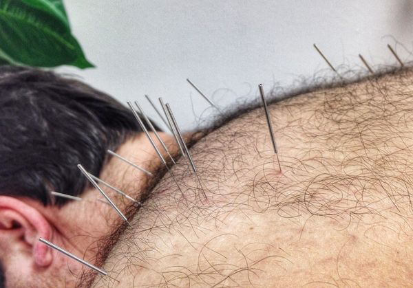 140823 Accupuncture